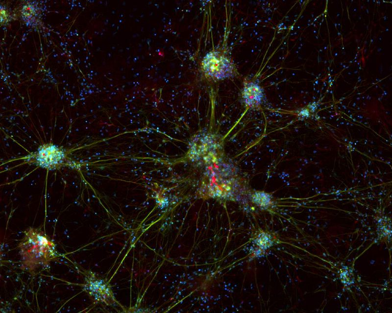 Cultured cortical neuronal cells (mouse). Simultaneous acquisition of 3 fluorochromes. Blue: DAP I, nuclei; Green: anti-Tubulin-Cy2; Red, Anti-Nestin-Cy3. Image acquisition was performed using a Leica DFC7000 T digital microscope camera in combination with a RGB cube in the microscope. Maximum projection done with LAS X software.